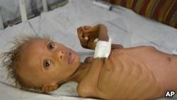 Xolera epidemiyası Yəməndə son iki ayda 1500 nəfərin ölümünə səbəb olub
